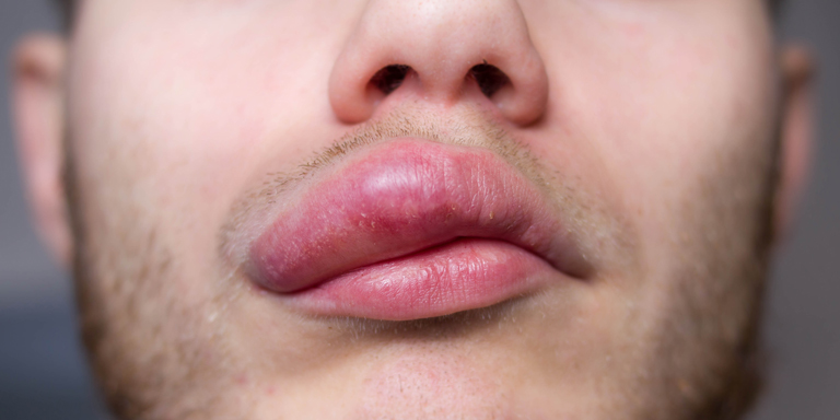 Common in the occurrence of angioedema are swollen lips, shown here in a man.
