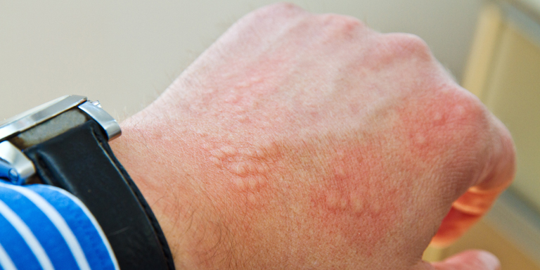 Hand with typical reddish pustules of urticaria.