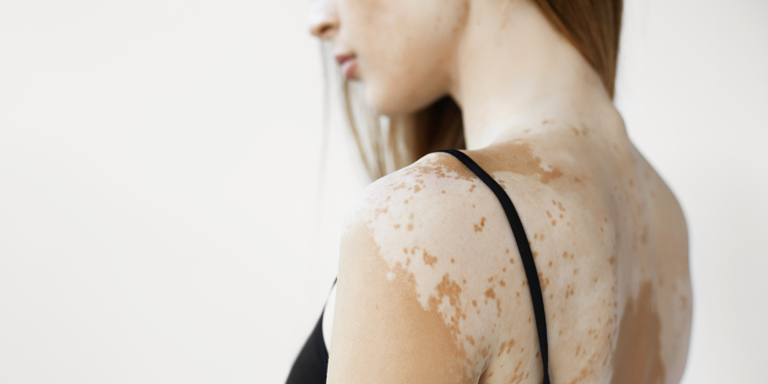 Naked shoulder area of a woman with the white patches on the skin typical of vitiligo.